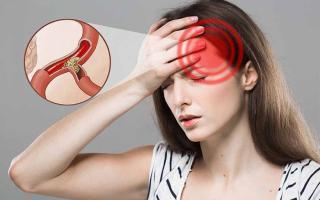Bị thiếu máu não đừng chủ quan vì có thể gây đột quỵ: 5 dấu hiệu nhận biết, người trẻ  lưu ý