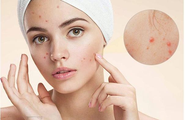 Nắm rõ nguyên nhân khiến mặt nổi mụn ở từng vùng và cách ngăn ngừa giúp da khỏe mạnh